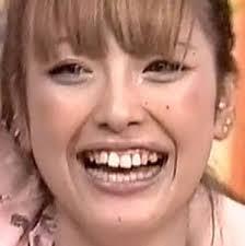 歯並びが悪い